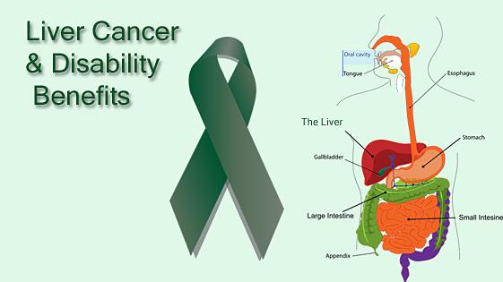 Liver cancer lawyer