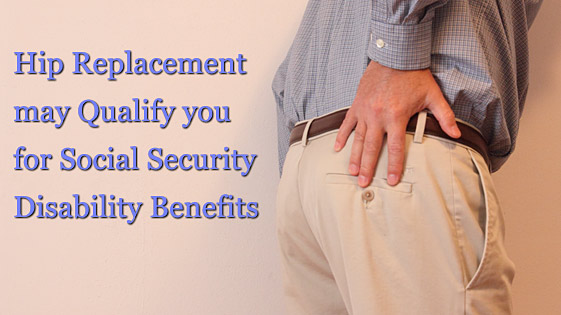 hip replacement disability lawyer